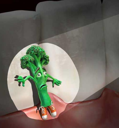 Чистка зубной нитью – необходимое условие для здоровья зубов.