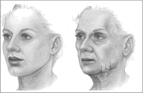 Потеря объема мягких тканей в процессе старения лица