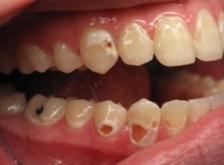 Причины появления эрозии зубов