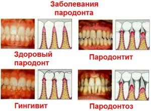 otlichitelnye-harakteristiki-gingivita-parodontita-i-parodontoza