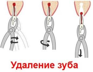 udalenie_zuba