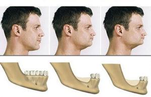 Атрофия костной ткани после удаления или выпадения зубов.