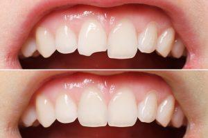 Пломбирование зубов и сколы на пломбе.