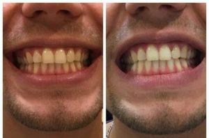 отбеливание зубов_1