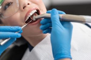 чувствительность зубов_1
